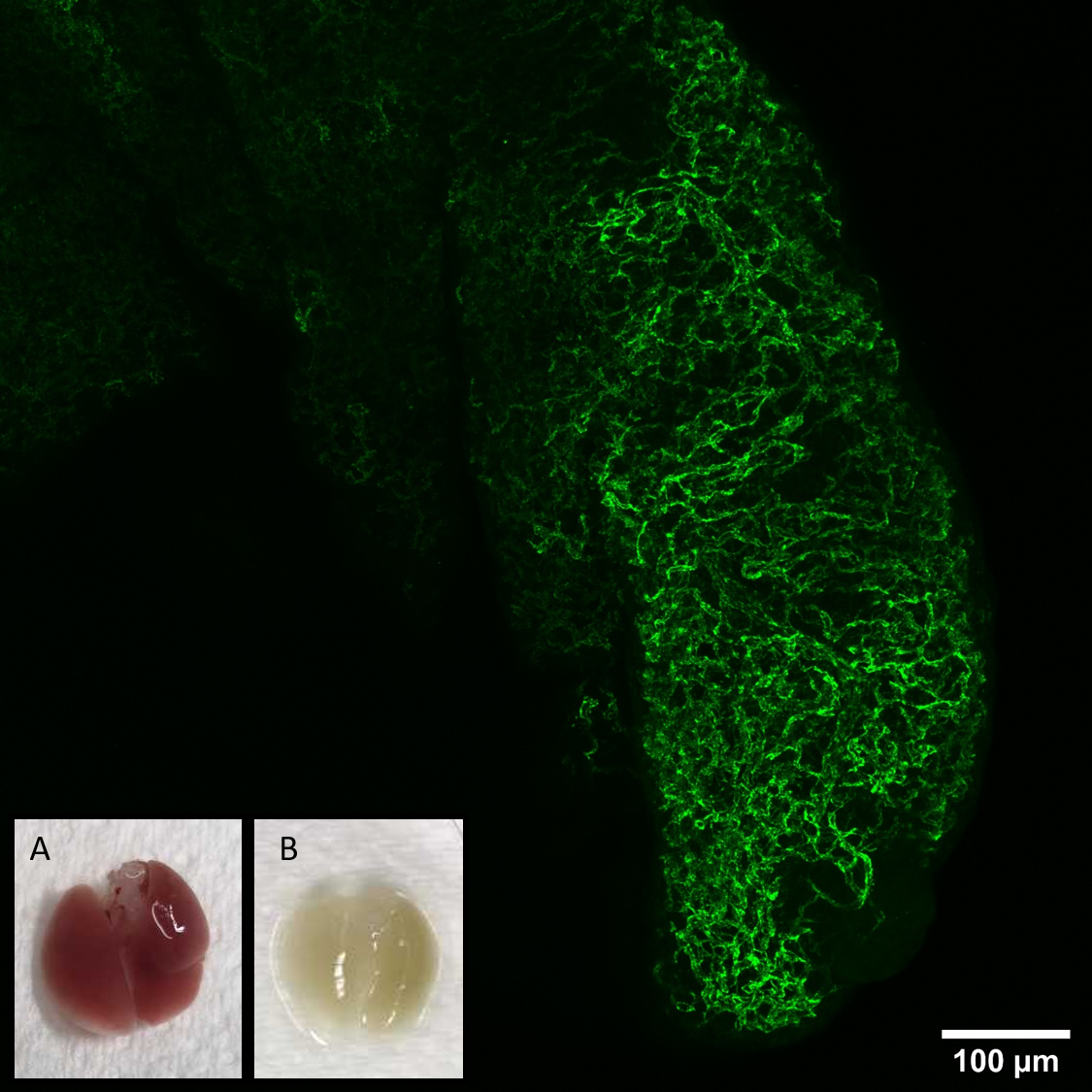 Z-projection of blood vessels in mouse tissue labelled with anti-CD31 antibody (green). The lung tissue before (A) and after (B) optical clearing.