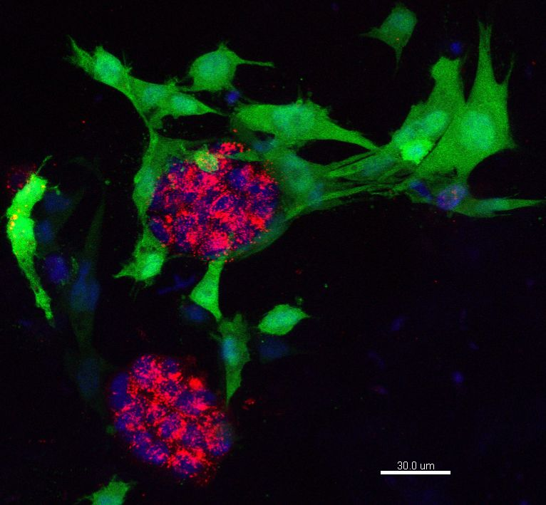 3D hydrogel co-culture of MCF10a normal breast cells (Red) with human mammary fibroblasts (Green)