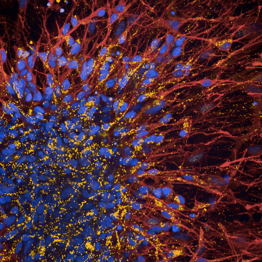 iPSC derived cortical neurons stained for MAP2 (red) and phosphorylated LRRK2 (orange)