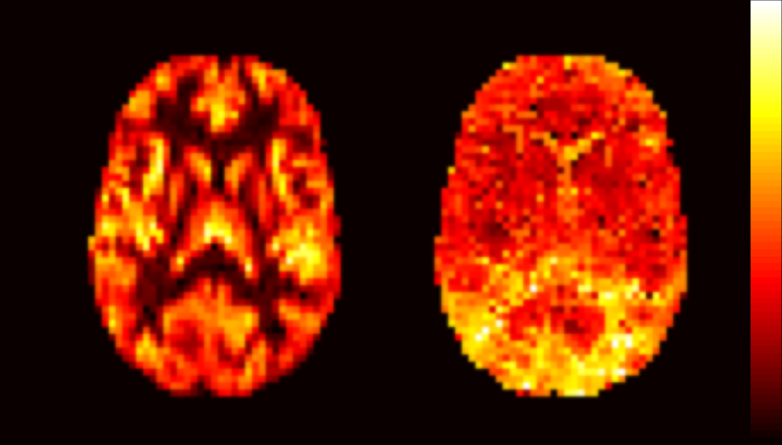Axial slices showing cerebral blood flow (left) and arterial transit time (right) maps. The colour range shows increasing blood flow and transit time from black to white, respectively.