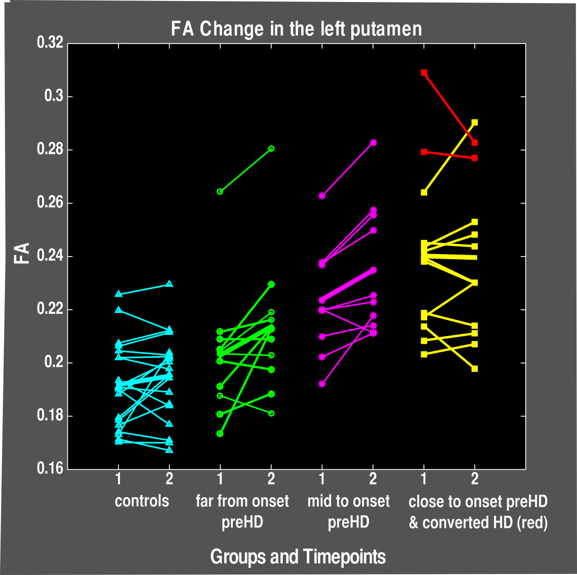 fractional anisotropy (FA) change over 1 year in pre-symptomatic Huntington's disease patients