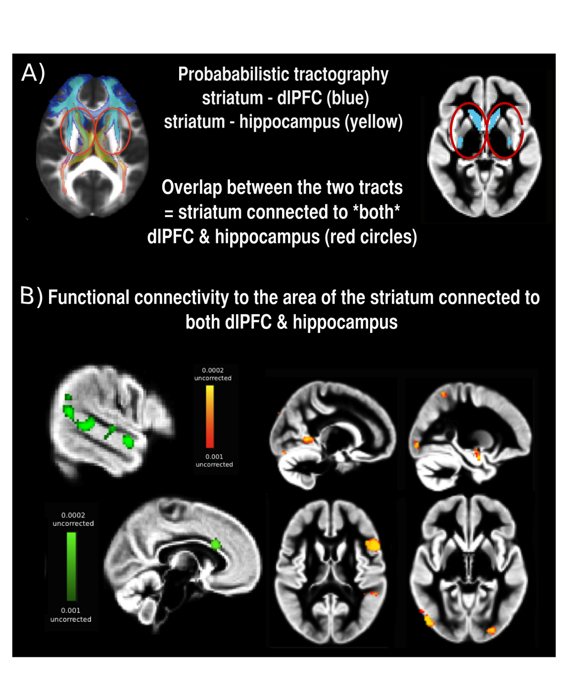 Structural and functional connectivity of the striatum in relation to working memory and episodic memory in healthy children and adolescents