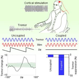 Brittain et al. (2013) Tremor suppression by rhythmic transcranial current stimulation. Current Biology, 23 (5): 436-440.