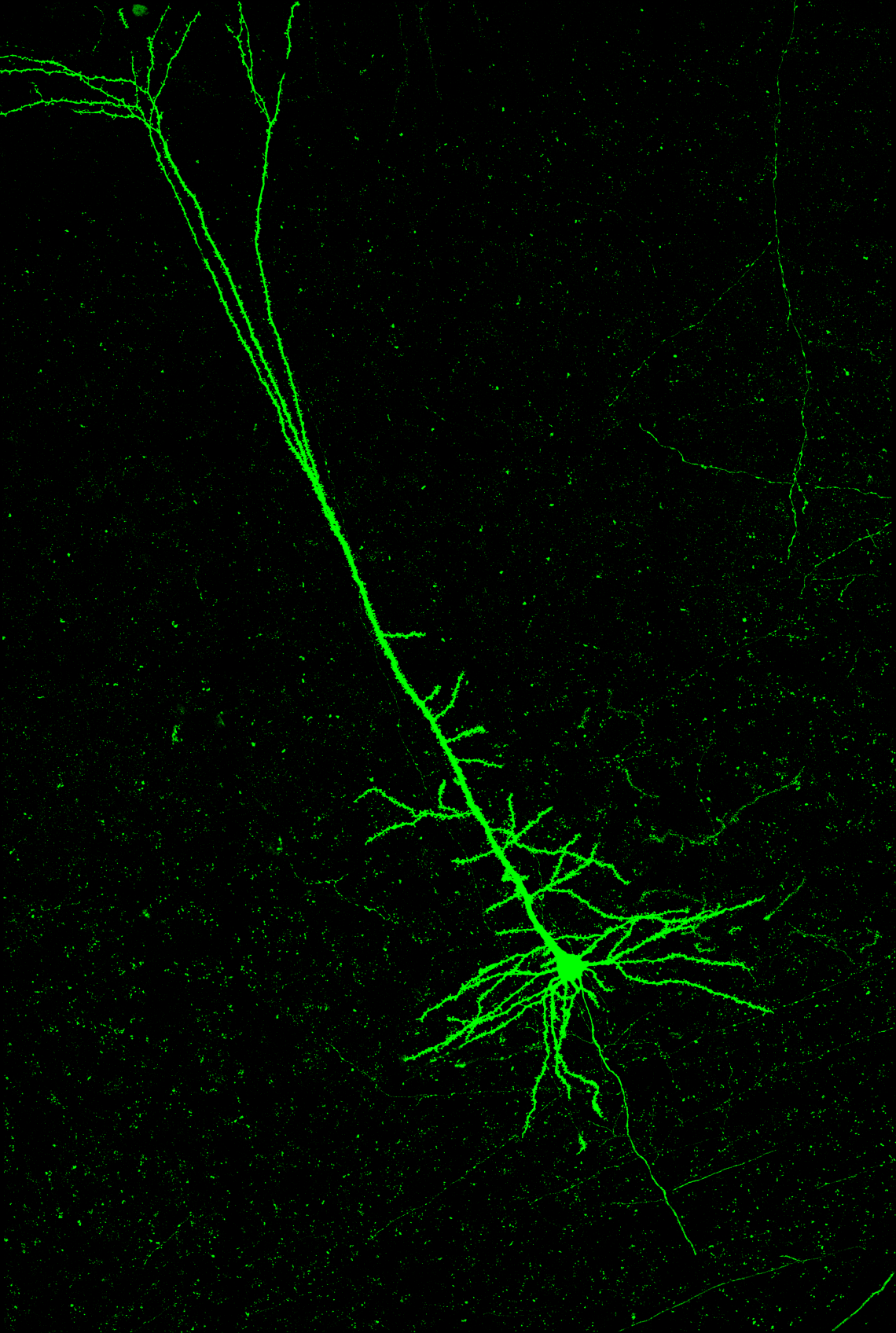 Labelled using anterograde transynaptic delivery of AAV1-cre injected into posterior medial nucleus of thalamus combined with cre-dependent retrograde expression of Jaws-GFP from auditory thalamus