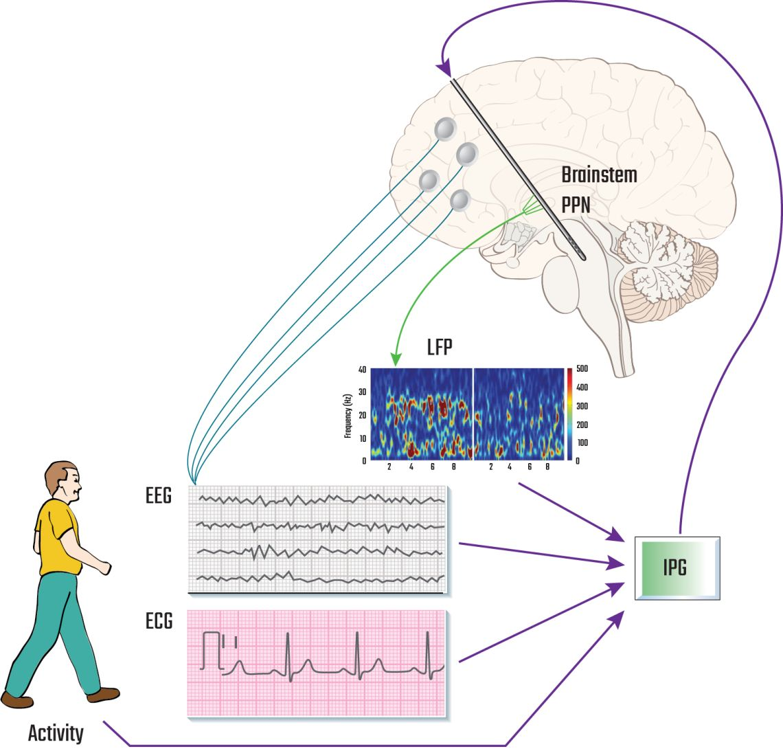 The patients in the trial will be implanted with Deep Brain Stimulating electrodes (connected to an Implantable Pulse Generator) into the PPN (brainstem) and signals from the brain (local field potentials), EEG (electroencephalogram) and other signals, such as physical activity, will be used to control the system in a 'closed loop' manner.