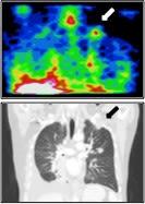 Radiotherapeutics 1