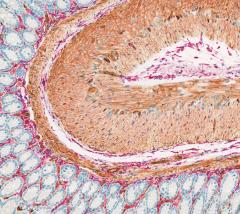 Image of Chromogenic IHC: CD146-CD34 Double IHC on Mouse Colorectal Tissue