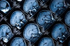 Study protocol: Insight 46 – a neuroscience sub-study of the MRC National Survey of Health and Development