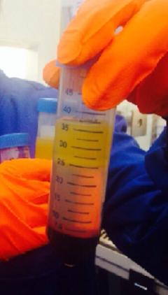 blood-sample.png