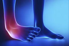 ankle.jpg