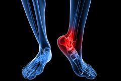 ankle 2 .jpg