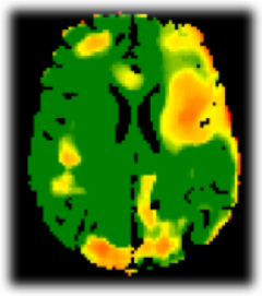 Amide proton transfer image of a brain showing normal tissue in green and tissue affected by stroke in yellow/orange.