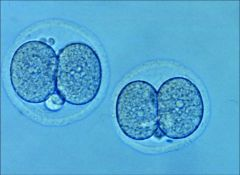 2-cell-embryo.jpg