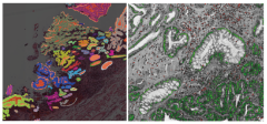 We have developed deep learning architecture for detecting glandular structures (left) and specific cell types (epithelial cells and lymphocytes) (right) in oesophageal tissue. These results illustrate the first steps we have taken toward developing the concept of a tissue map for histology imaging. Images show histology images with overlaid maps of computationally detected structures.