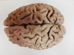Brain 1 - top B.jpg