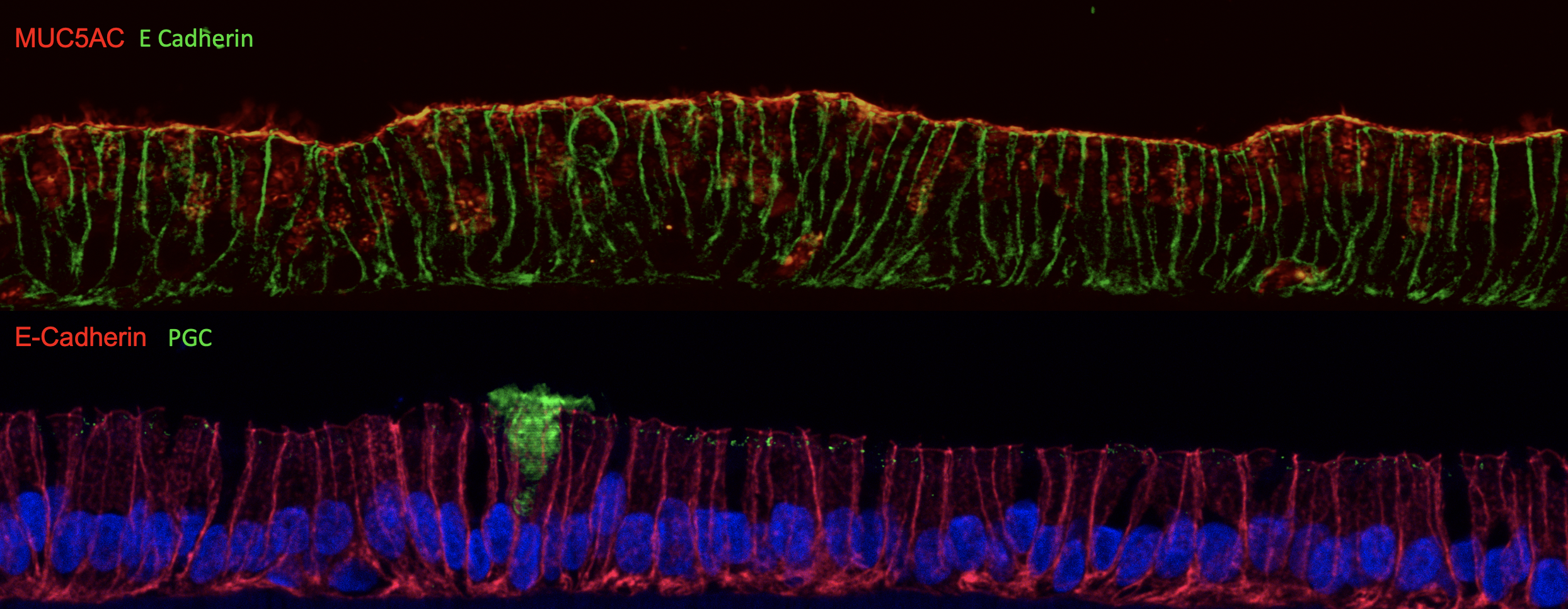 Top: example of a mucosoid with cells (the plasma membrane is labelled in green) producing protective mucins (MUC5AC) labelled in red (the yellow is where the two labels overlap creating the mucus layer). Bottom: example of a mucosoid with cells (the plasma membrane is labelled in red and the nuclei in blue) showing one cells producing Pepsinogen (in green) the precursor of pepsin, the main digestive enzyme.