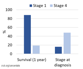 A bar chart of lung cancer statistics showing that 88% people survive for 1 year if diagnosed at stage 1 but only 19% survive for 1 year if diagnosed at stage 4. 16% of lung cancers at diagnosed at stage 1 whereas 48% are diagnosed at stage 4. Data from Cancer Research UK.