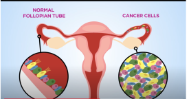 Scientists closer to finding the cell of origin for ovarian cancer