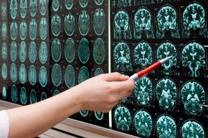 Specialties iStock MRI
