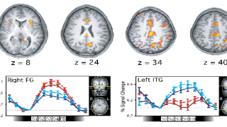 We study the brain mechanisms of high-level cognitive functions, including attention, memory, and decision making. We investigate these topics using a combination of behavioural, computational, and brain imaging techniques.