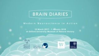 Staff success as Brain Diaries comes runner-up in the OxTALENT Public Engagement category