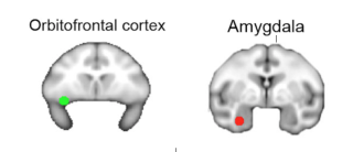 Ep researchers reveal dissociable functions for amygdala and orbitofrontal cortex