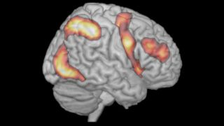 Our work addresses brain mechanisms underlying cognition and behaviour, with an emphasis on selective attention and memory. We are especially interested in the attentional, learning and memory functions of the frontal and parietal lobes, which generate dynamic, context-dependent cognition.  Our work uses behavioural observation, brain imaging and neurophysiological techniques.