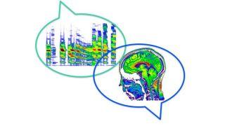 Speech & Brain Research Group (Prof. Kate Watkins)