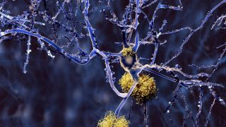 Investigating changes in cerebral protein synthesis rates in Alzheimer's disease