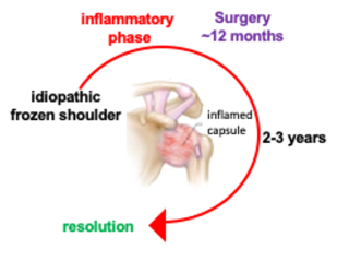 Representation of treatment phases for frozen shoulder