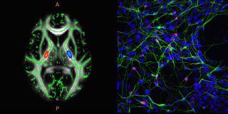 Oxford motor neuron disease centre 2