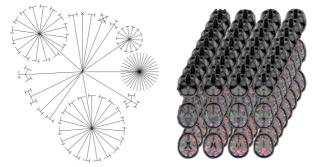 Big data imaging genetics and statistics