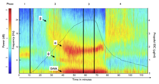 Spectrogram of an ultraslow induction and recovery from propofol anaesthesia