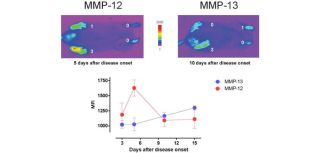 MMP-12 and MMP-13 imaging probes describe different waves of protease activities in inflammatory arthritis
