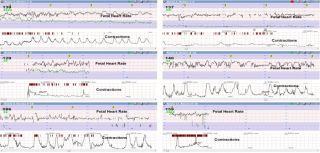 Daily fetal monitoring in labour at the women2019s centre john radcliffe hospital the cardiotocogram ctg consists of two signals fetal heart rate and uterine contractions in each delivery room the ctg is printed on paper and assessed by eye which is