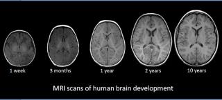 Human brain development 1
