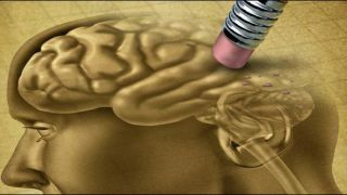 Risk of dementia after tia or stroke