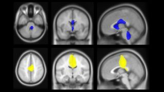 Experimental neurology image