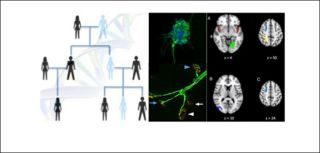 Neurogenetic disorders group