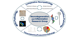 Research strategies of our group. In the Comparative Neuropathology quadrant, we represent the different manifestations of neurodegenerative and inflammatory disease in which we are interested. In the Genetics-Pathology quadrant, we represent our interest in exploring the relationship between genes and pathologic features in post-mortem tissue. In the Transcriptomics/Proteomics-Pathology quadrant, we illustrate some current work linking multiple sclerosis pathology and its relationship to gene expression and protein alterations. In the MRI-Pathology quadrant, we illustrate axonal loss and alterations in the MRI signal of the spinal cord in multiple sclerosis. For each of these strategies, we apply rigorous quantitative neuropathological outcome measures.