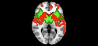 The basal ganglia network is in green, and the significant difference between Parkinson's patients and the control group in red