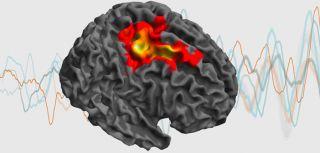 New brain network dynamics unit