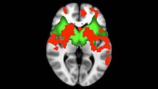 Two major grants for Oxford's Parkinson's research