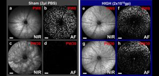 Prevention of retinal degeneration using CNTF gene therapy applied to one eye of a mouse model of retinitis pigmentosa, which also has fluorescent cones that can be counted. At 8 weeks (PW8) both eyes appear similar, but by 30 weeks retinal pigment changes can be seen in the sham injected eye (c) as the degeneration progresses with all cones lost (d). In contrast, the CNTF treated eye (g, h) has a virtually unchanged fundal appearance and over 50% of cones surviving (from Lipinski et al., 2015).