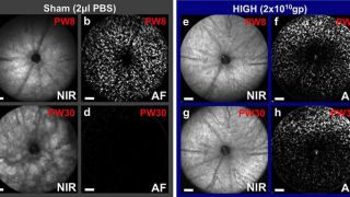 Gene therapy gives long-term protection to photoreceptor cells in a mouse model of retinitis pigmentosa