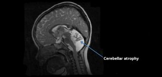 Cerebellar atrophy