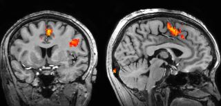 How is fmri used