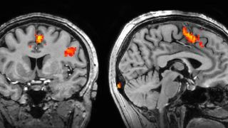 How is FMRI Used?
