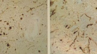 Tackling toxic proteins in dementia and Parkinson's Disease