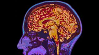 Mri scans reveal how brain protects memories